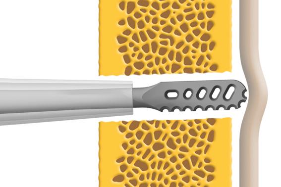 Instrumentar pentru chirurgie spinala